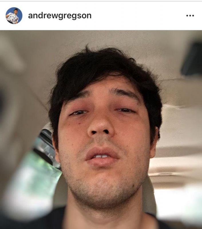 แอนดริว งานเยอะ เครียด ซึมเศร้า