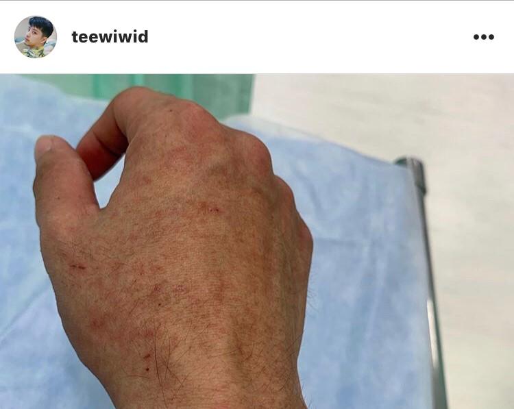 ตี๋ วิวิศน์ เข้าโรงพยาบาล ป่วย ไข้เลือดออก