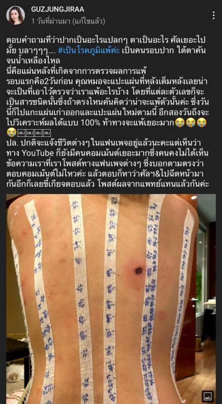 กัสจัง จีราร์ ชาวเน็ต แพทย์ ศัลยกรรม ดราม่า