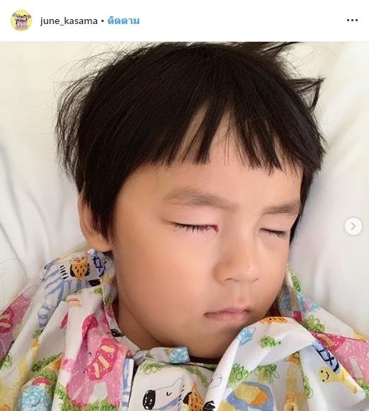 น้องออกู๊ด ตาขี้เกียจ Lazy Eyes ผ่าตัด เปิ้ล นาคร