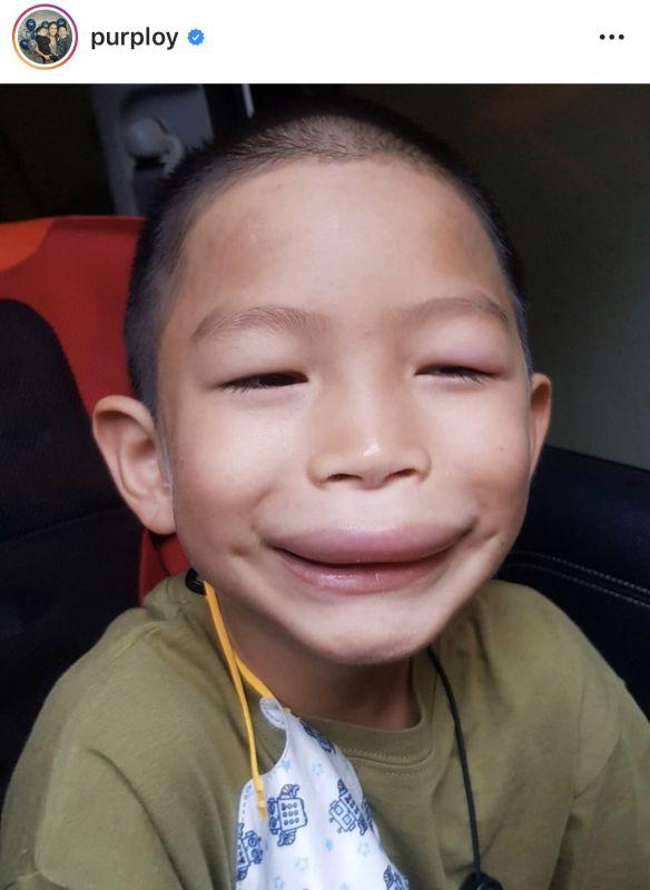 พลอย พลอยพรรณ น้องพูม่า ปาก ยุง