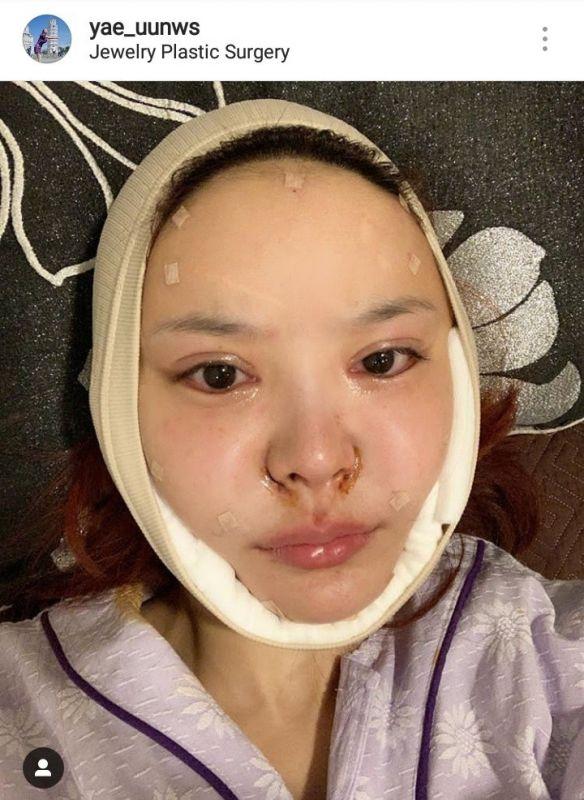หญิงแย้ ศัลยกรรม บิน เกาหลี ทำหน้าใหม่